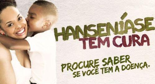 Prefeitura de Itararé (SP) orienta sobre a prevenção da Hanseníase